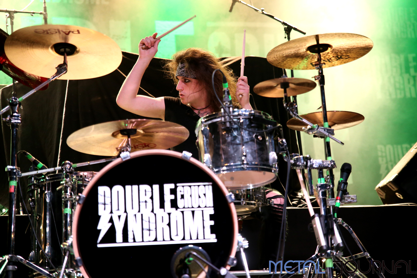 double crush syndrome - metal journal 2018 pic 2