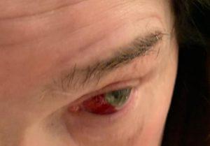 Ozzy ojo